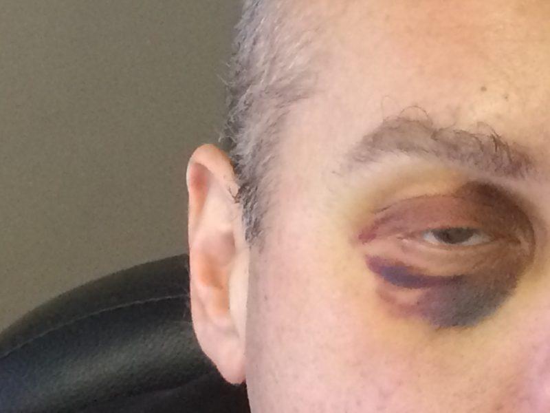 La victime a reçu une dizaine de coups de poing, dont certains à la figure.