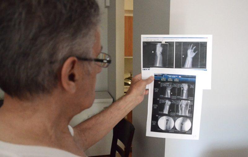 Luc Delisle tenant les radiographies du poignet de sa conjointe. Photo: Denis Bélanger